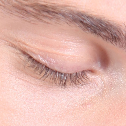Body Parts answer: EYELID