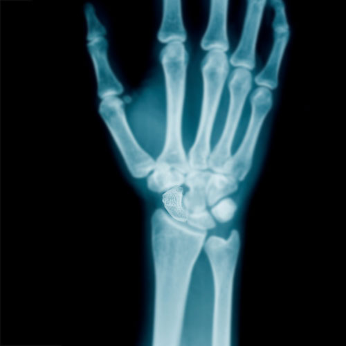 Body Parts answer: SCAPHOID