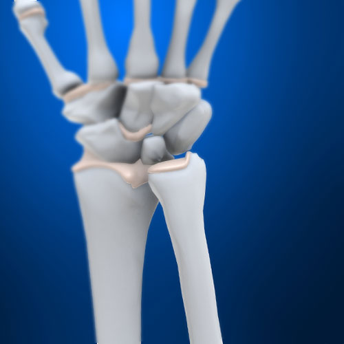 Body Parts answer: ULNA