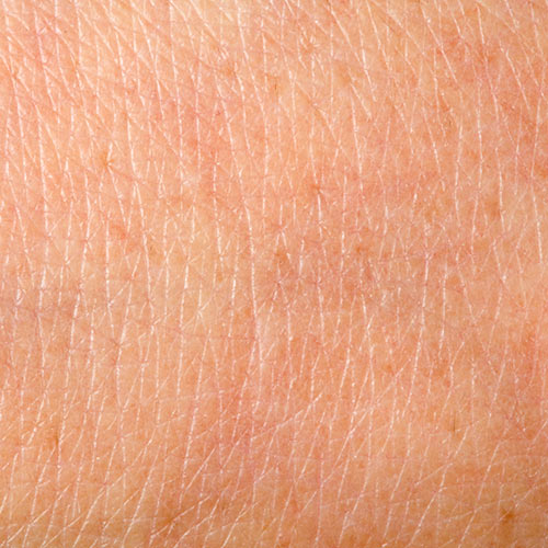 Science answer: EPIDERMIS