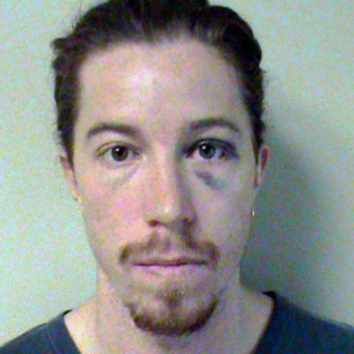 Celeb Mugshots answer: SHAUN WHITE
