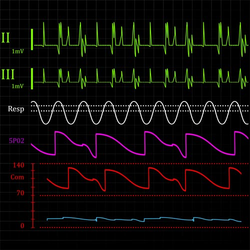 Keep Fit answer: HEART MONITOR